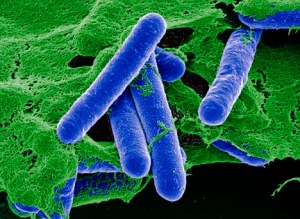 Clostridium botulinum, or Botox in the wild.  (Photo Credit: Dr. Gary Gaugler/Science Photo Library)